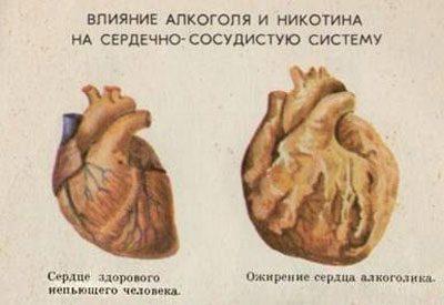 Сердце алкоголика