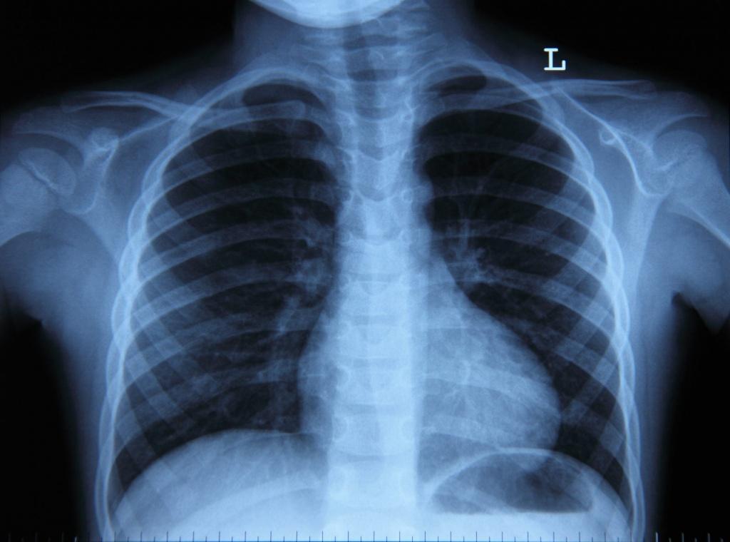 Доза облучения при рентгене