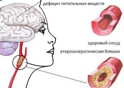 Проявление энцефалопатии