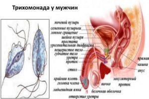 diagnostirovanie_i_lechenie_trihomoniaza_u_muzhchin_3-300x200.jpg
