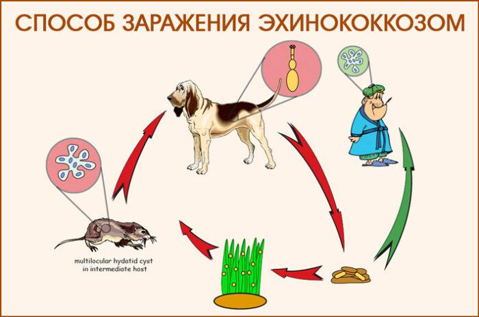 ehkhinokokkoz-pecheni_22.jpg