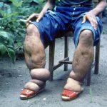 elephantiasis-in-man-s-legs-br-image-credit-cdc-1962-br-150x150.jpg