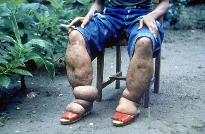 elephantiasis-in-man-s-legs-br-image-credit-cdc-1962-br.jpg