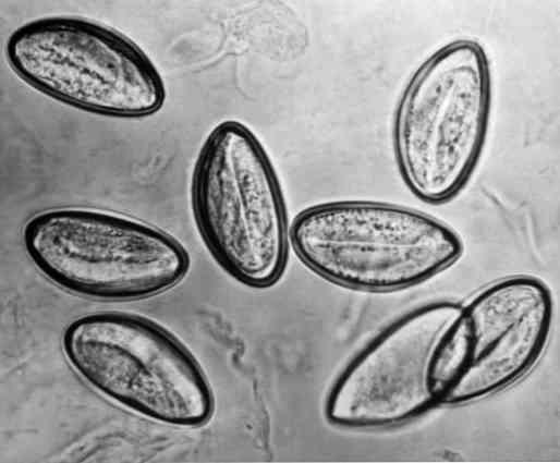 enterobius-vermicularis-caractersticas-morfologa-ciclo-de-vida-contagio.jpg