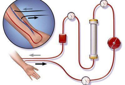 Процедура гемосорбции