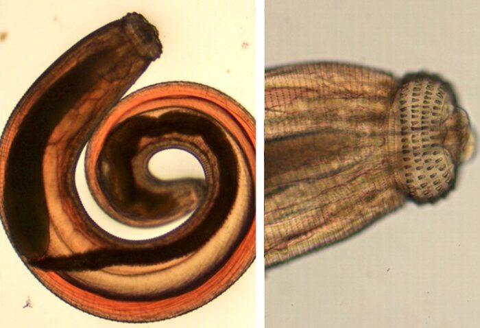 gnathostoma_spinigerum.jpg