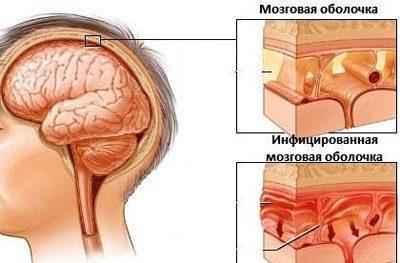 Проявление менингита