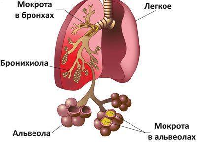 Проявление пневмонии