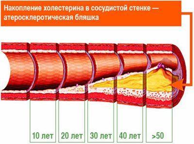 Образование холестериновой бляшки