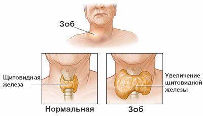 Зоб при заболевании щитовидки