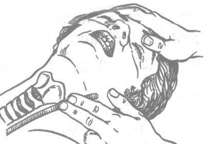 Проверка пульса на сонной артерии