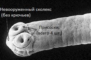 hymenolepis_diminuta.jpg