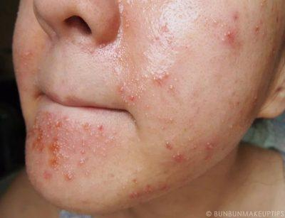 аллергическая сыпь на коже лица