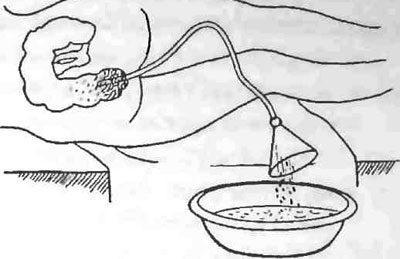 Сифонный метод промывания кишечника