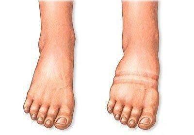 Нормальная и отекшая нога