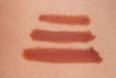 Полоски из йода на коже