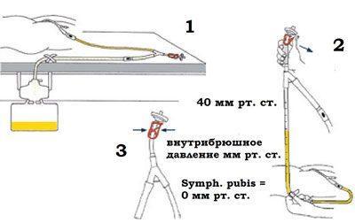 Определение внутрибрюшного давления