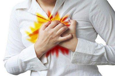 Симптом изжоги