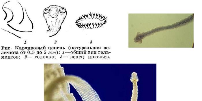 karlikovyj-cepen-str.jpg