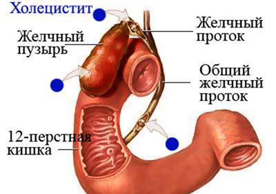 Проявление холецистита