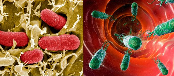 kishechnaya-infekciya.jpg