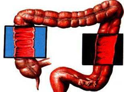 Слизистая кишечника при колите