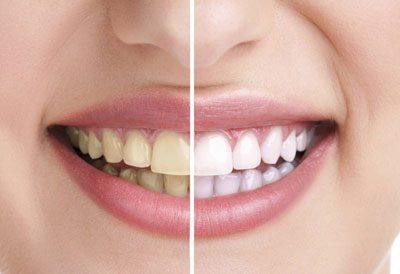 Зубы после отказа от курения