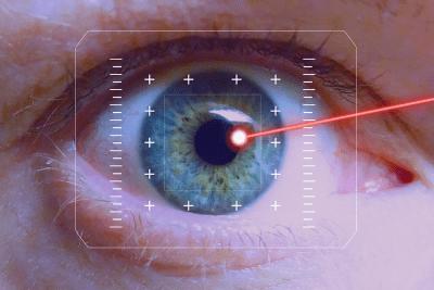 Применении лазеров в микрохирургии глаза