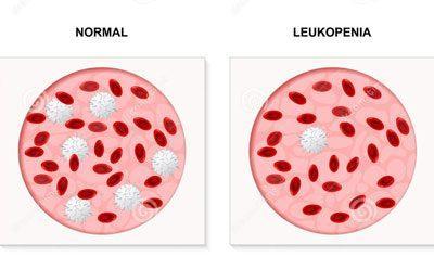 Проявление лейкопении