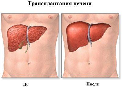 Печень после трансплантации