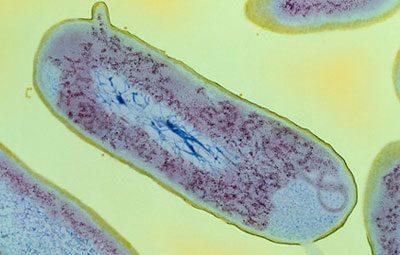 Шигелла под микроскопом
