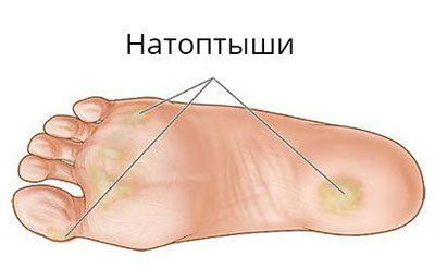 Натоптыши на ноге