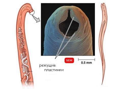 nekatoroz-foto-simptomi-i-lechenie_2.jpg