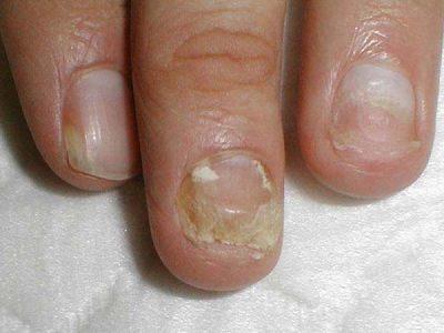 ногти, зараженные грибком