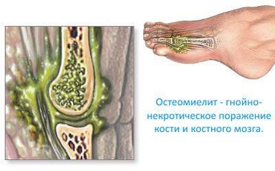 Проявление остеомиелита