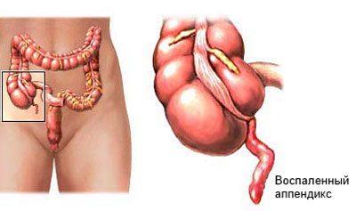 Воспаление апендикса