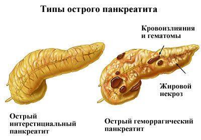 Острый панкриатит