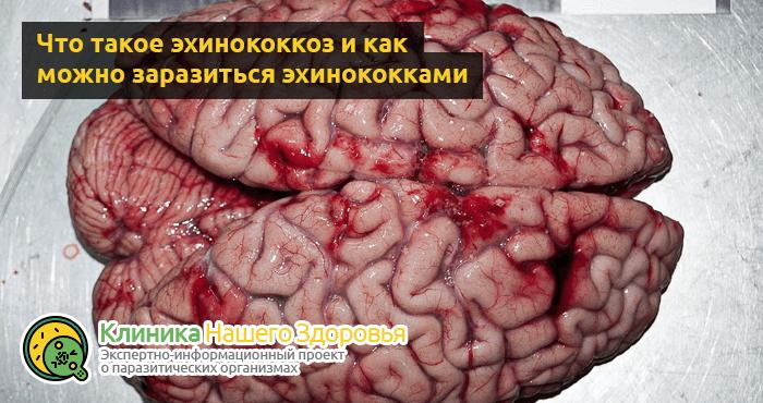 parazity-v-mozge-3.png