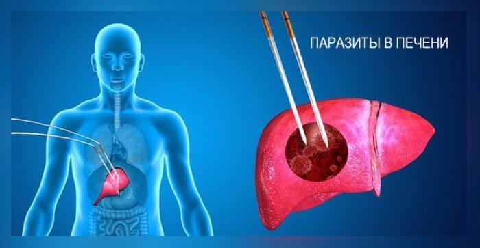 parazity-v-pecheni-cheloveka.jpg