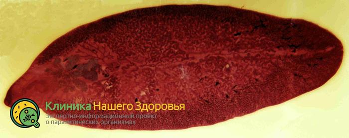 pechyonochnyj-sosalshhik-1.png