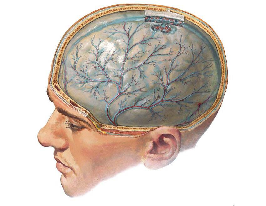 Токсическое поражение белого вещества головного мозга