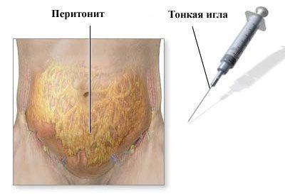 Выявление перитонита