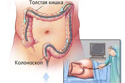 Эндоскопическое исследование прямой кишки