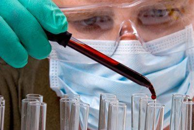 Коагулограмма крови