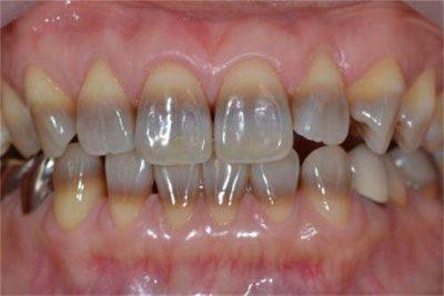 Зубы при отравлении свинцом