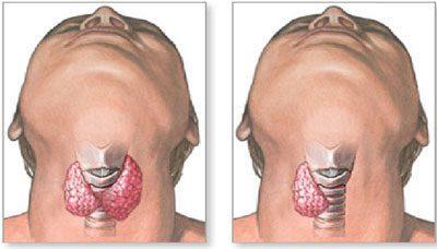 Удаление части щитовидки