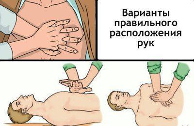 Расположение рук при массаже сердца