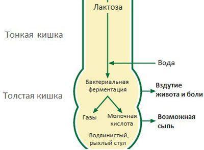 Непереносимость лактозы у грудничка