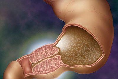 Пилоростеноз желудка