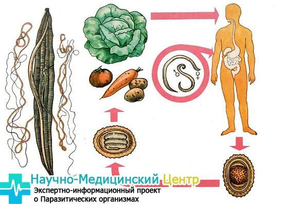 pyti_zarazheniya_askaridami_gemoparazit_w212-min.jpg